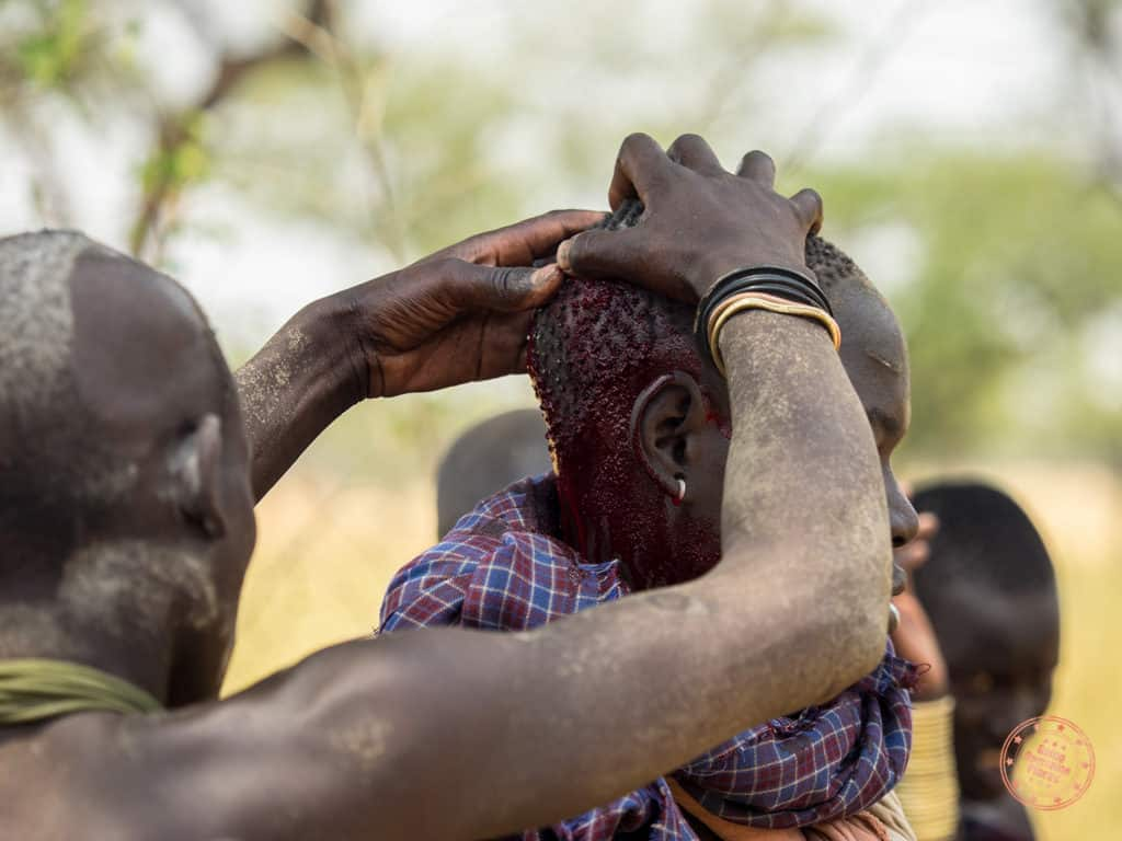 Mursi tribe member with cut on head after fight